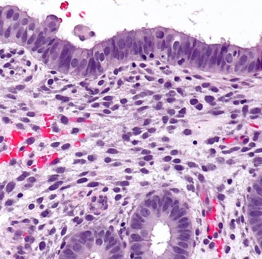 Micrograph of proliferative phase endometrium. H&E stain. CREDIT: Nephron - Own work. (CC BY-SA 3.0).
