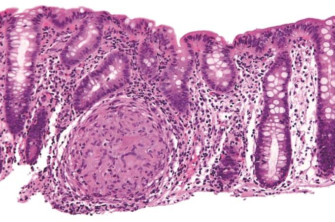 Microscopic image of inflammatory bowel disease. CREDIT: Nephron, Wikimedia Commons.