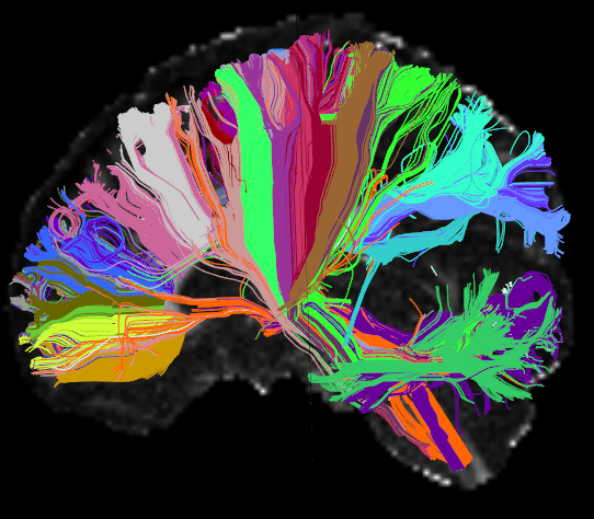 This High Angular Resolution Diffusion Image (HARDI) of the human brain shows long distance connections, or tracts, grouped on the basis of their anatomical neighborhood. Wiring associated with particular brain structures share the same color. CREDIT: Viviana Siless, PhD, Anastasia Yendiki, PhD, MGH/Harvard, Boston Adolescent Neuroimaging of Depression and Anxiety (BANDA)