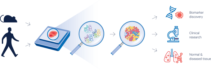 Figure 3. Fueling translational research. Spatial gene expression of intact FFPE tissue sections allows for biomarker discovery, performing retrospective and longitudinal studies, and comparisons of normal and diseased tissue.