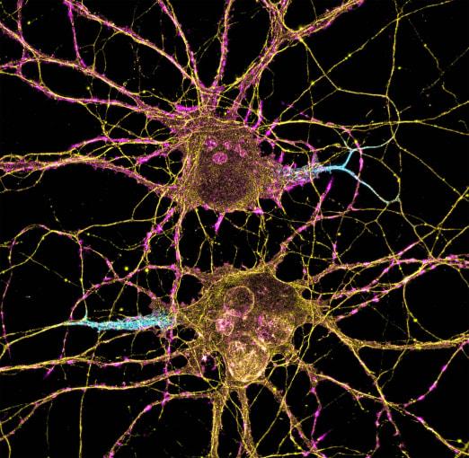 Neurons. Credit: Leterrier, NeuroCyto Lab, INP, Marseille, France